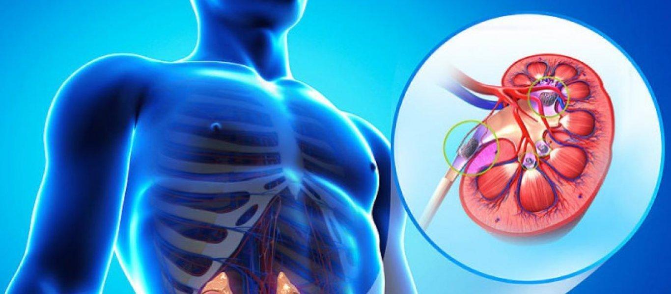 Κολικός νεφρού: Πώς θα απαλλαγείτε φυσικά από τους πόνους;