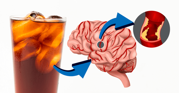 Light drinks cause stroke according to this new study