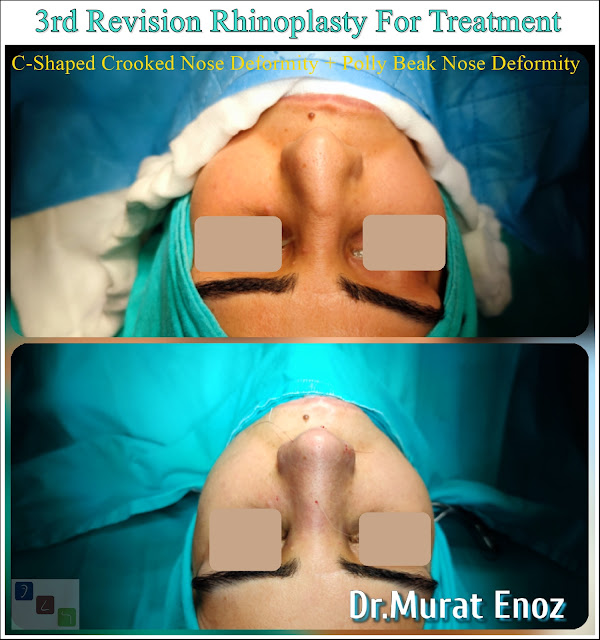 """3rd Revision Rhinoplasty For Treatment of """"C-Shaped Crooked Nose Deformity"""" + """"Polly Beak Nose Deformity"""""""