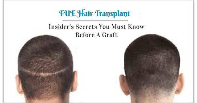 FUE Hair Transplant-Insider's Secrets You Must Know Before A Graft
