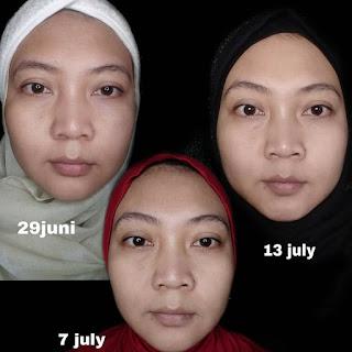 Serum anti aging, serum mencerahkan, serum glowing, serum retinol
