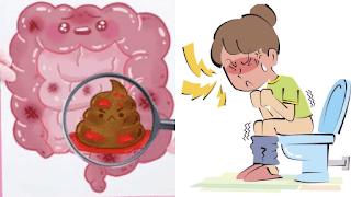 <img source='pic.gif' alt='Remèdes  pour combattre la constipation naturellement.'/>