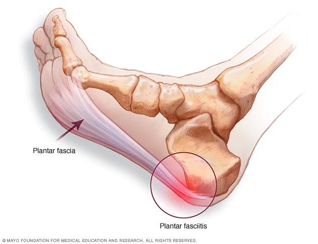călcâie dureri la articulații