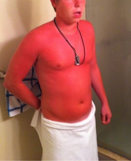 white dude with a really bad sunburn