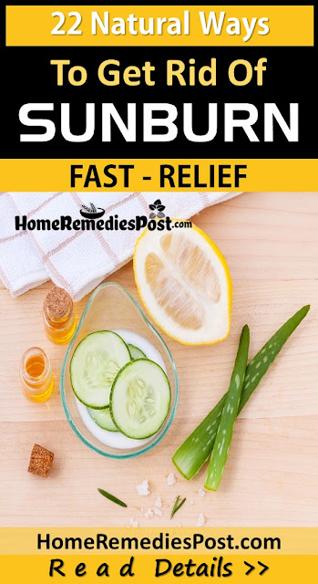 sunburn relief fast, Home Remedies For Sunburn, how to treat sunburn, how to get rid of sunburn
