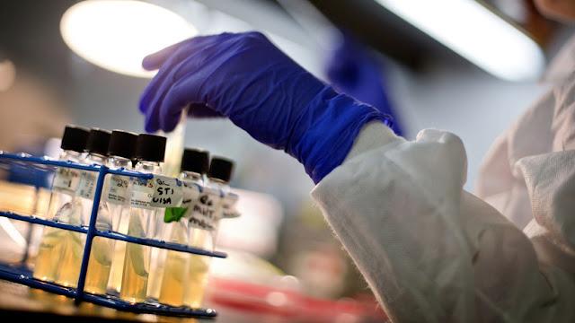 Un fármaco contra el cáncer se muestra eficaz para el VIH