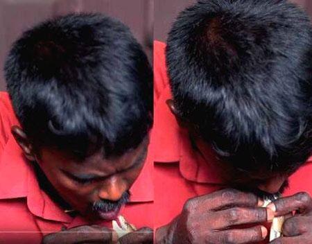 Vava Suresh caught snake, Thiruvananthapuram, News, Snake, Injured, Kerala, Video