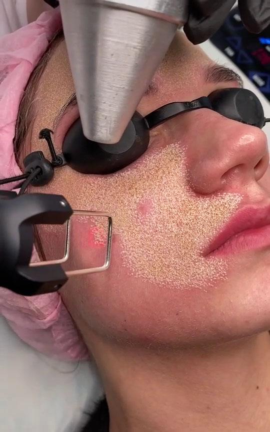 Laser là phương pháp xâm lấn hữu hiệu để cải thiện sẹo, nhưng cần phải lựa chọn được địa chỉ thực hiện uy tín có bác sĩ tay nghề cao.
