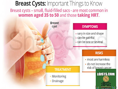Breast cysts - Symptoms and causes