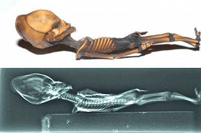 Hasil Rontgen Sinar-X pada Fosil Humanoid Alien Atacama