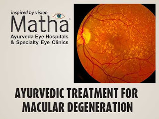 Macular Degeneration Ayurvedic Treatment