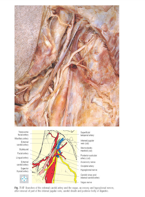Branches of the external carotid artery and the vagus, accessory and hypoglossal nerves, after removal of part of the internal jugular vein, carotid sheath and posterior belly of digastric.