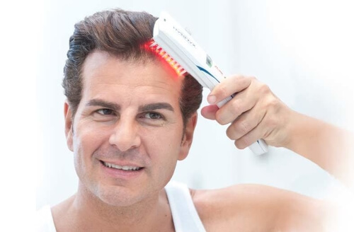 laser comb therapy for mens hair loss
