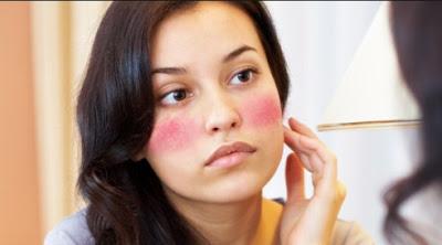 Tanda Kulit Alergi Terhadap Kosmetik Yang Wajib Anda Tahu