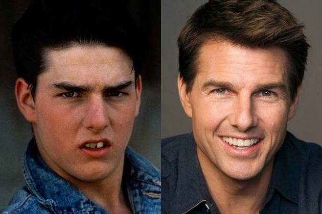 dental cad cam system famous stars and actors actresses before and
