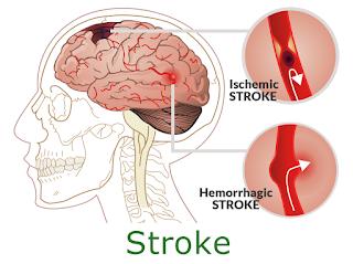 obat-stroke-di-apotik