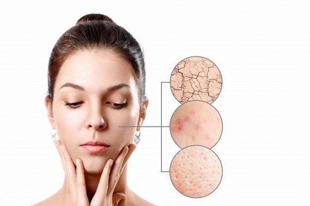 Top 5 Homemade Face Masks For Dull Skin