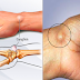Facts About Ganglion Cyst: Cause, Symptoms and Treatment