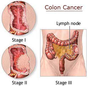 Treatment Zone Colon Cancer Colorectal Cancer