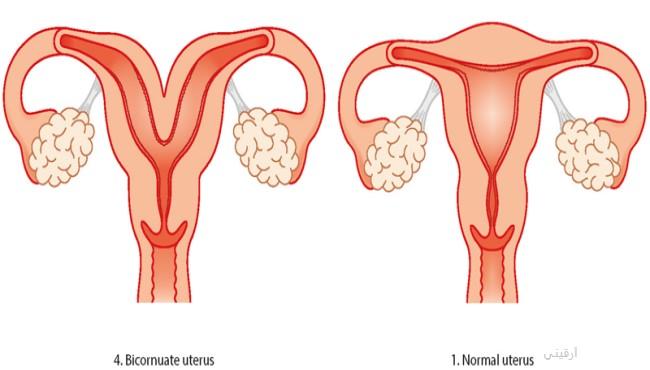 علاج سيلان الدم من الرحم بالطب البديل