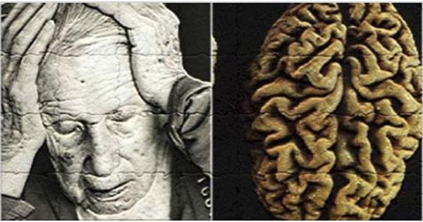 La malattia di Alzheimer può essere prevenuta;  Solo un esercizio al giorno e la tua memoria sarà nuova