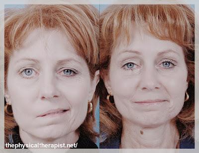 شلل الوجه النصفي والعلاج الطبيعي