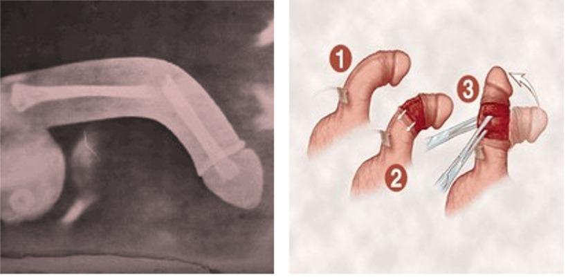 Grey S Anatomy Broken Penis 61