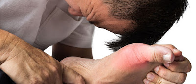 cara menyembuhkan penyakit asam urat