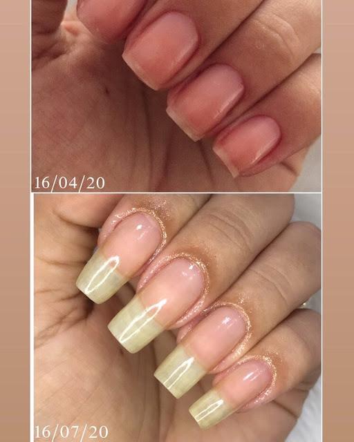 Solutions maison pour blanchir et traiter les ongles jaunis