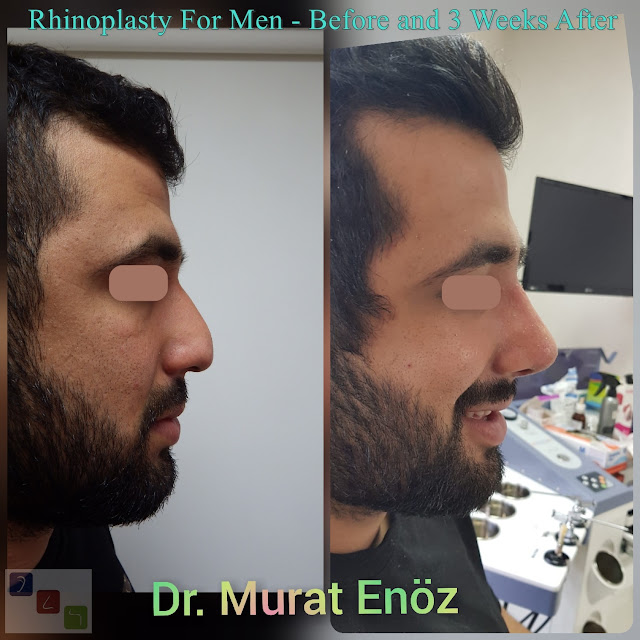 Rhinoplasty For Men - Before and 3 Weeks After - Male Nose Job Turkey