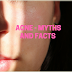 Acne - Myths and Facts