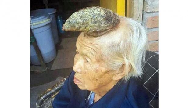 Unik, Nenek Ini Memiliki Tanduk 12 Sentimeter di Kepalanya