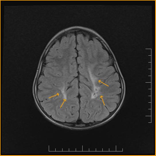 periventricular leukomalacia in adults jpg 1200x900