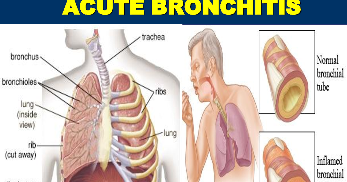 Bronchiolitis symptoms adults of in