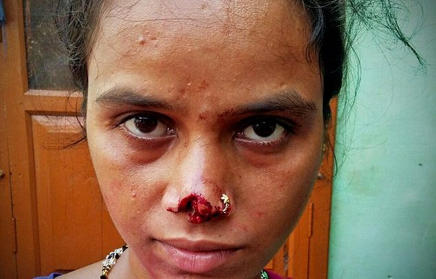 Husband Cuts Off Wife's Nose Because Her Family Couldn't Afford To Pay A Dowry