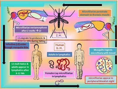 gejala-penyakit-kaki-gajah