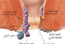 علاج البواسير الخارجية المنتفخة