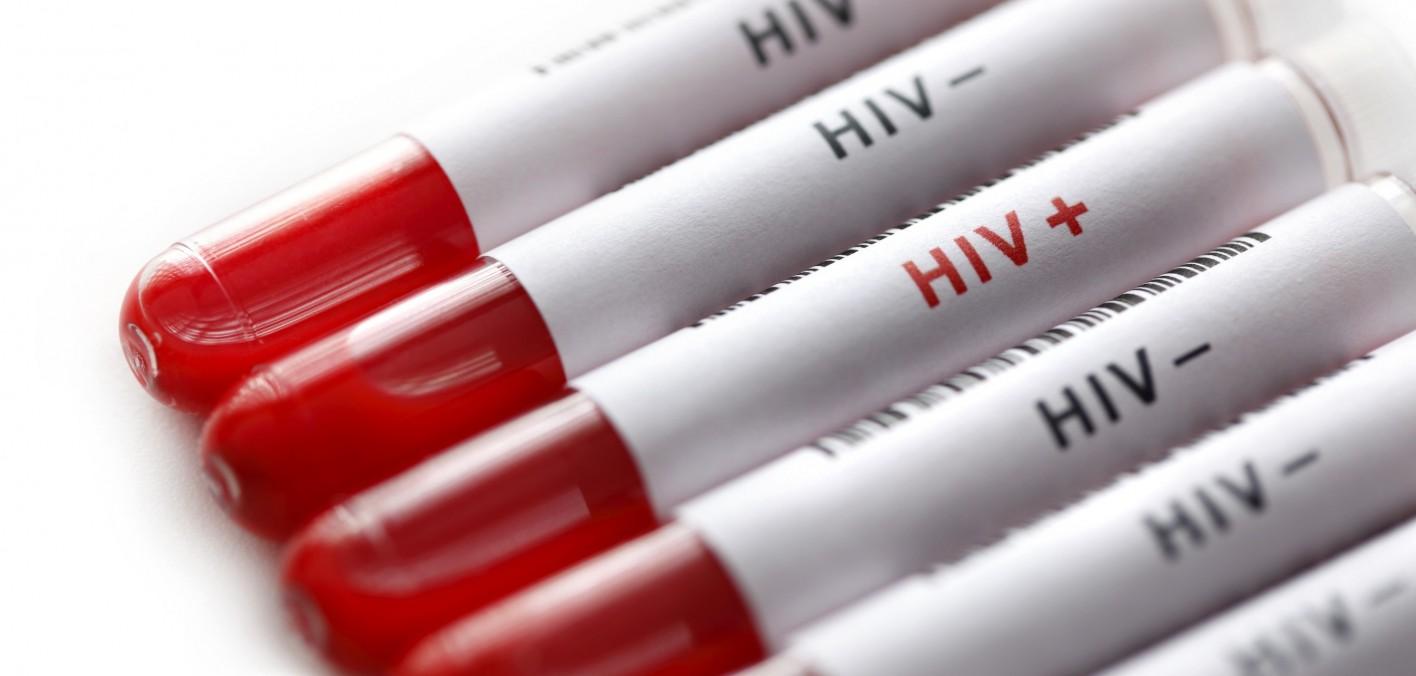Mais de 260 mil brasileiros sabem que têm HIV e não se tratam
