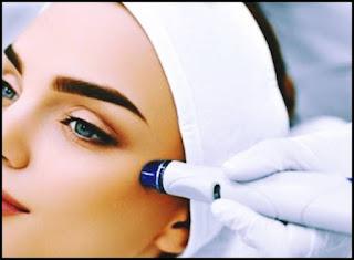 pareri microdermabraziune laser tratament facial