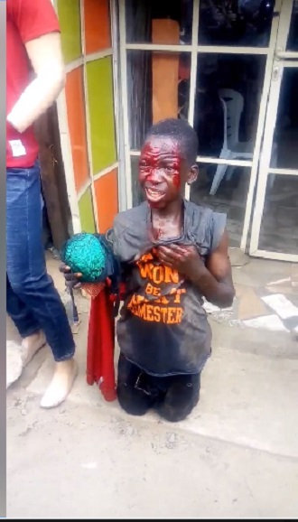Boy Left Bloodied After Being Caught Stealing Female Underwear (Photos+Video)
