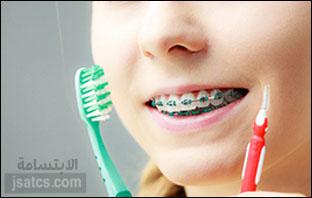 اسعار علاج الاسنان في دبي
