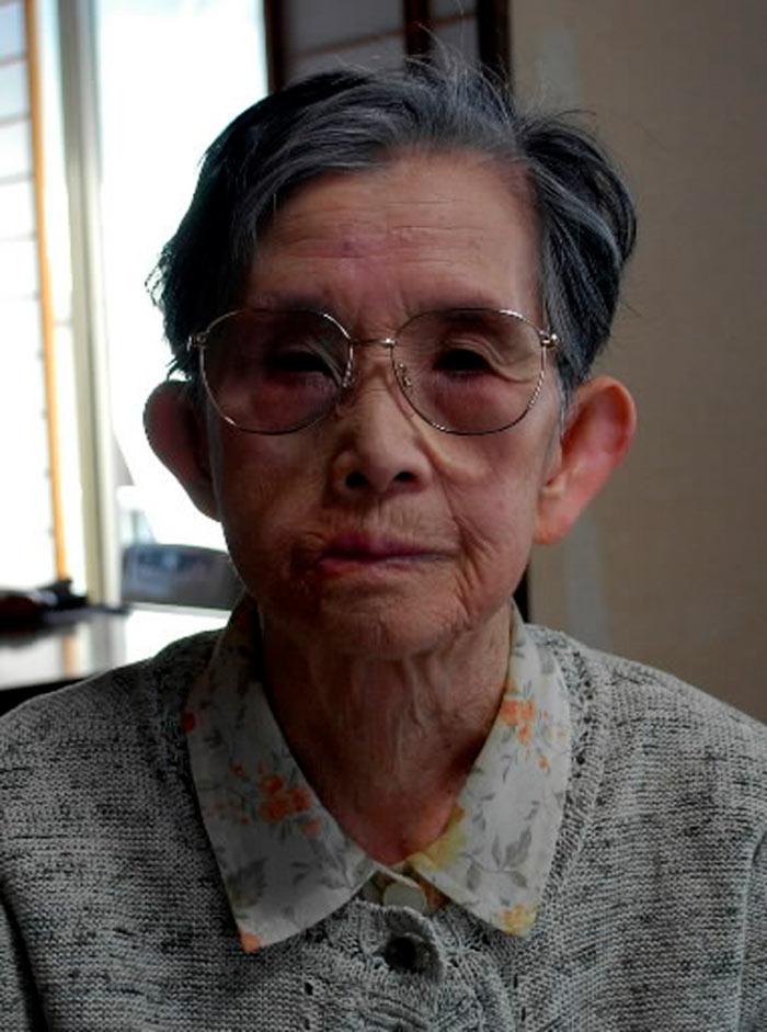 Shizuko Abe, superviviente de la bomba de Hiroshima