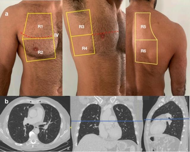 Ultrassonografia vira importante ferramenta na triagem de casos de COVID-19