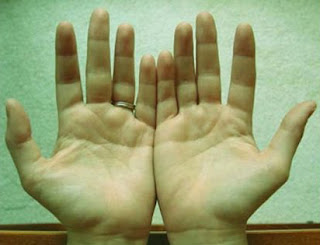 अँगलियों के पोरों पर चिह्न और उनके फल   Ungliyo Ke Chinho Ka Faladesh Hastrekha