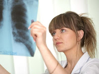 Final Stages of Lung Cancer Life Expectancy