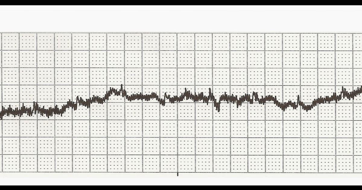 Float Nurse: EKG Rhythm Strip Quiz 185