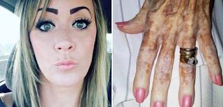 Γυναίκα που εργάζεται σε γηροκομείο, Ανέβασε το χέρι μιας ηλικιωμένης και έγινε αμέσως Viral! Προσέξτε τη Φωτογραφία καλύτερα και θα καταλάβετε…