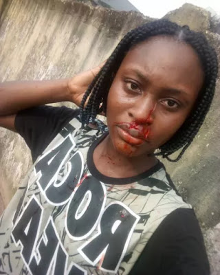 Uniport Students Slits Roommates Nose With A Razor