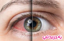 اكثر 6 اسباب لالام العين و علاجها