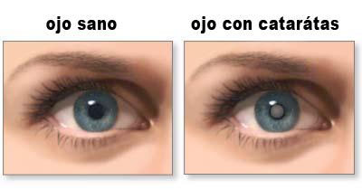 que son las cataratas de los ojos